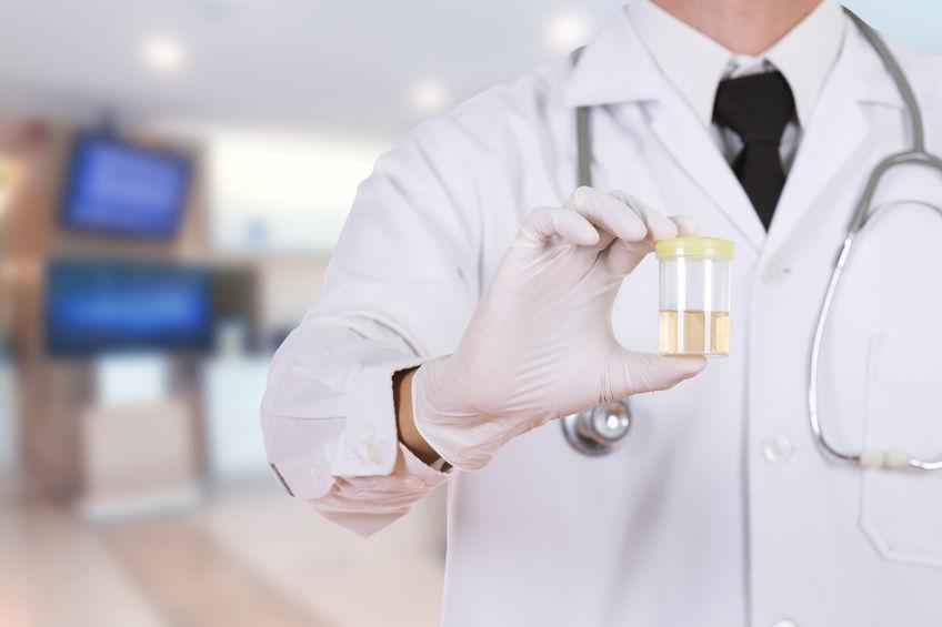 Sangue na urina: sintomas, causas e tratamentos